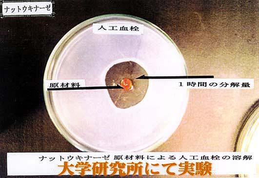 商品に含まれているナットウキナーゼの1時間の血栓分解量